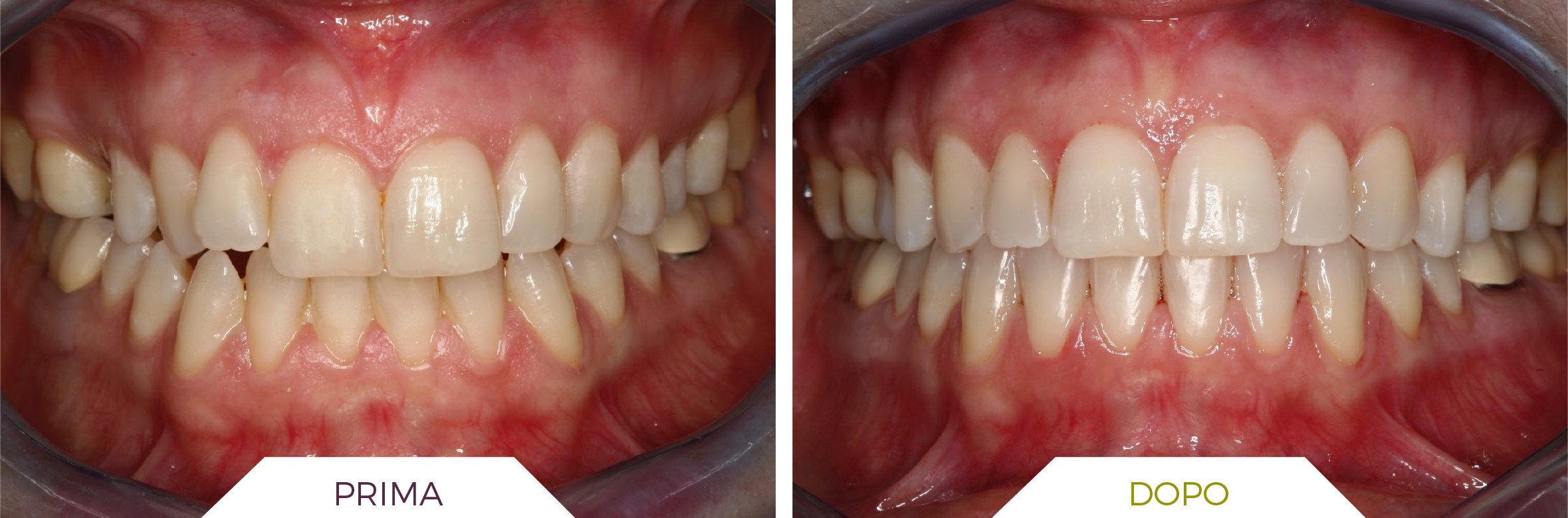 Inlaser- Ortodonzia-01
