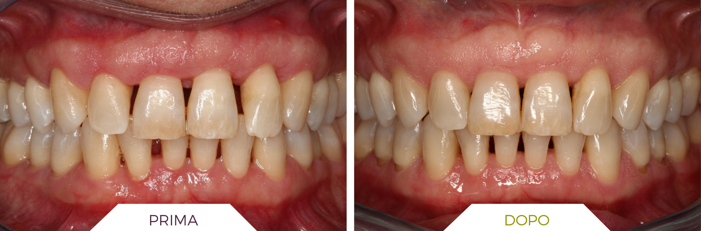 Inlaser- Ortodonzia-02