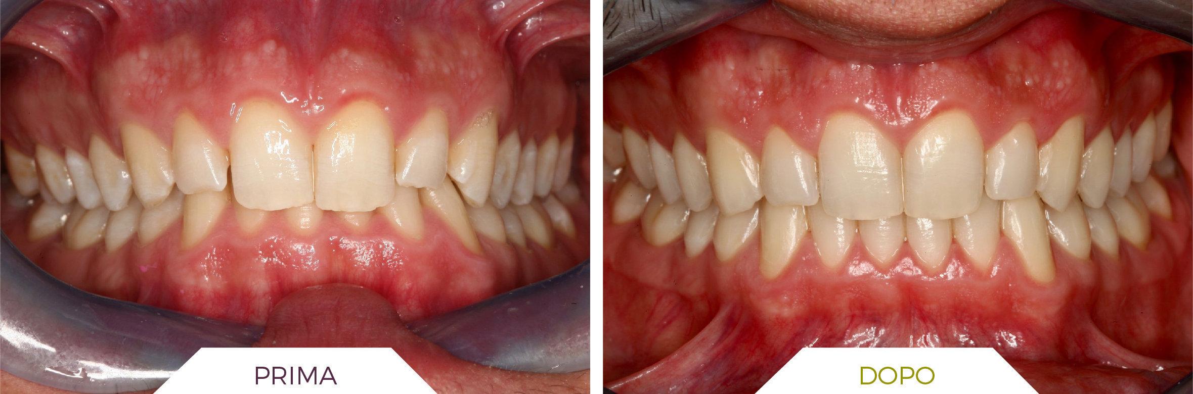 Inlaser- Ortodonzia-04