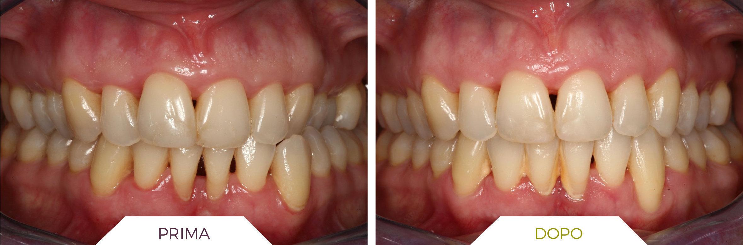 Inlaser- Ortodonzia-06