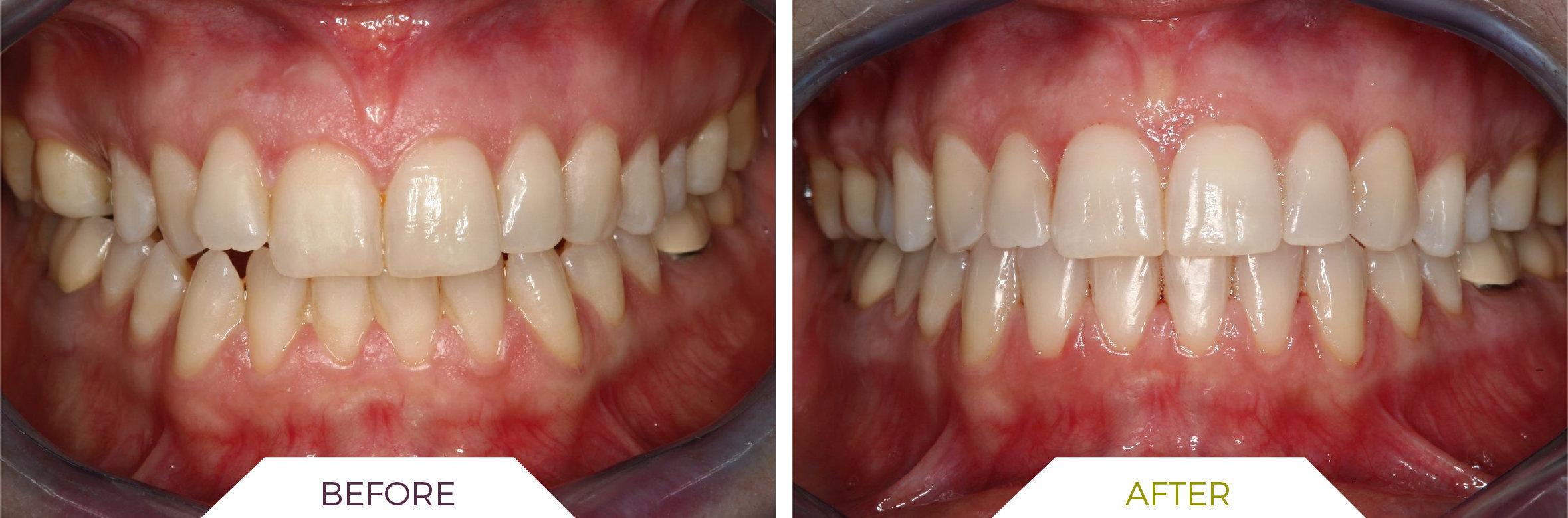 Inlaser- Ortodonzia ING-01
