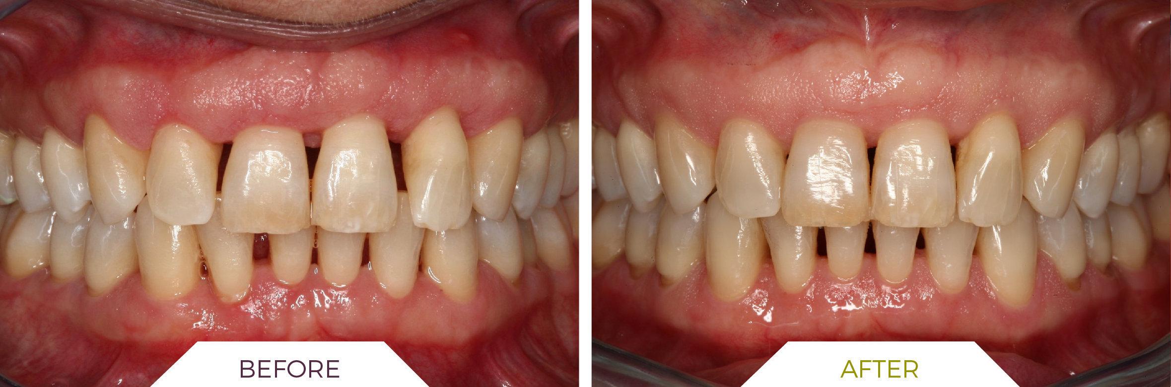Inlaser- Ortodonzia ING-02