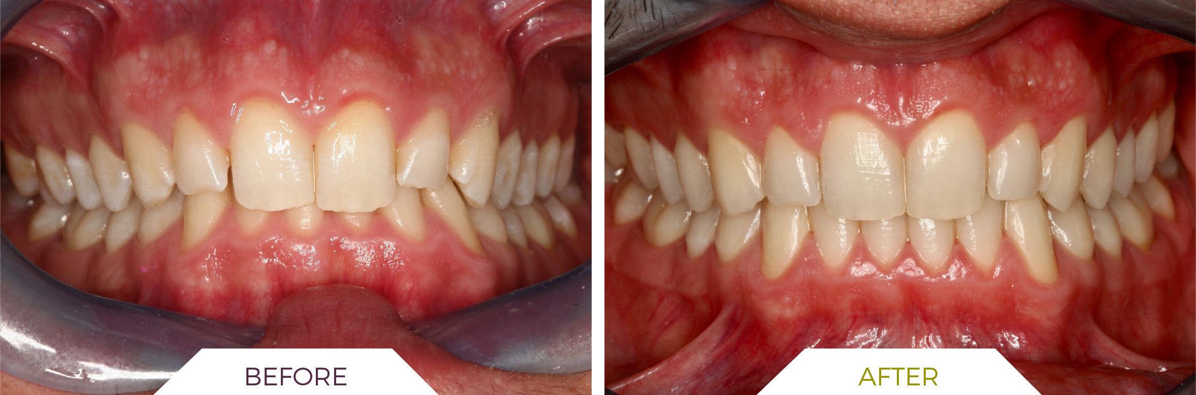 Inlaser- Ortodonzia ING-04