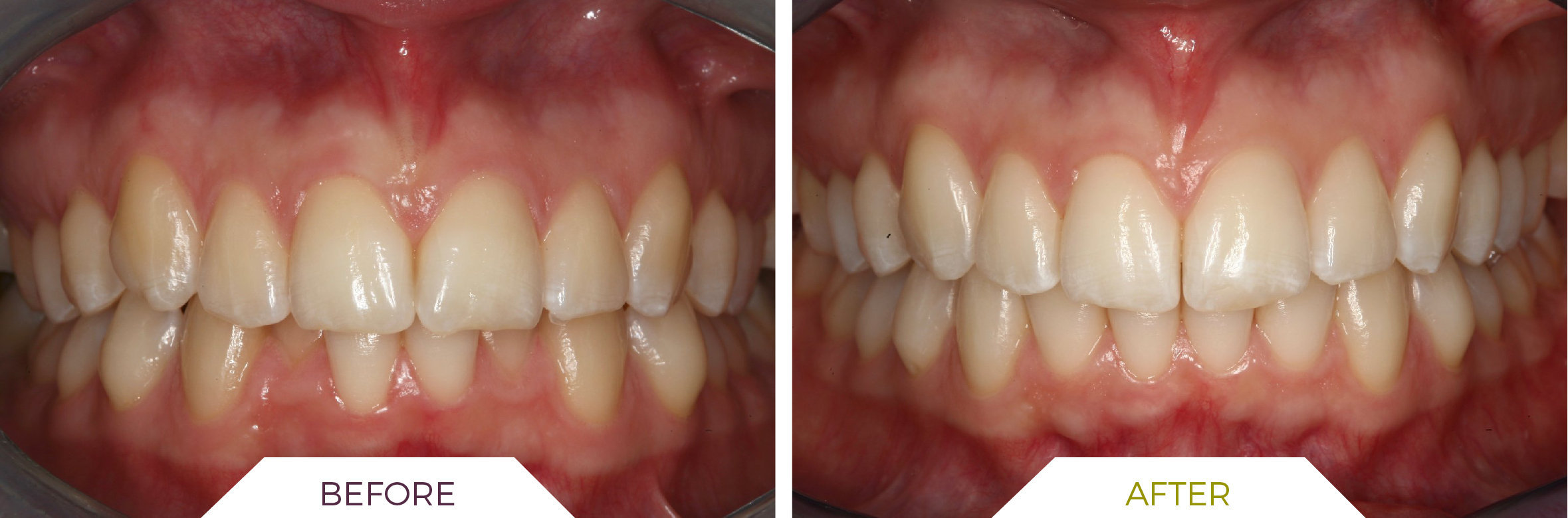 Inlaser- Ortodonzia ING-05