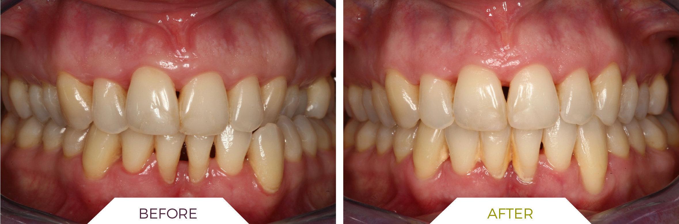 Inlaser- Ortodonzia ING-06